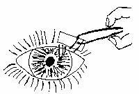 trachome_03.jpg (22570 octets)